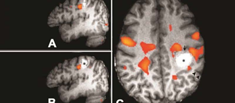 קברנומות מוחיות Brain Cavernoma